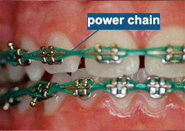 power chain